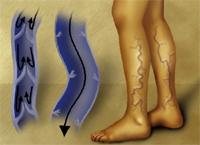 Рисунок с сайта www.medimagery.com